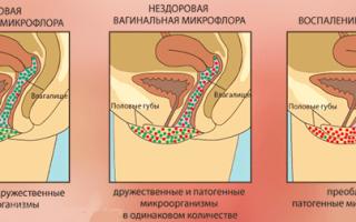 Как восстановить флору после молочницы — Всё о гинекологии